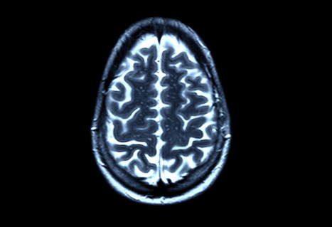 What Weight Loss Does to Your Brain | CTS | Scoop.it