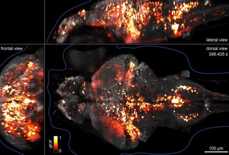 Whole brain cellular-level activity mapping in one second | Anatomy | Scoop.it