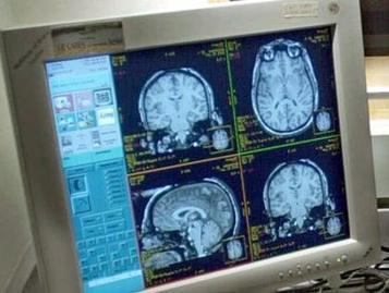 Sexo en el cerebro: el orgasmo altera la conciencia, Articulo OnLine | INNOVA´TICS | Scoop.it