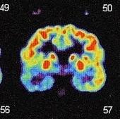 Préférence manuelle et langage : existe-t-il vr...   Cerveau intelligence   Scoop.it