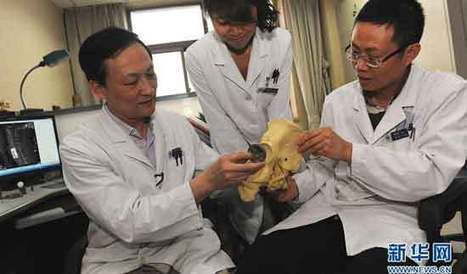 Beijing hospital performs world's 1st 3D printed vertebra surgery - CCTV | COOL 3DPRINTING | Scoop.it