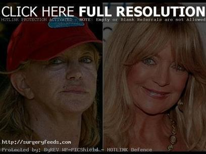 Goldie Hawn Plastic Surgery Before and After Pictures | Plastic Surgery Before and After Photos | Scoop.it