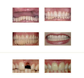 periodontist Norwalk C | Selma Kaplan Periodontics | Scoop.it