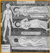 Artrosis e historia   Medicina Primitiva   Scoop.it