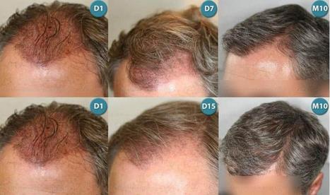 Graft Calculation - Hair Transplantation | Hair Transplantation Turkey | Scoop.it