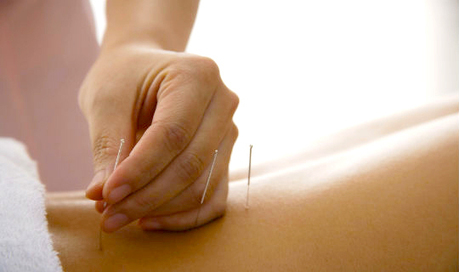 Keep Your Body Always Fit With Acupuncture Massage Therapy | Health & Fitness | Scoop.it