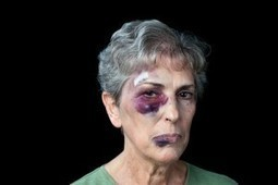 Facial Fracture Attorney Los Angeles | Los Angeles Accident Attorney News | Scoop.it