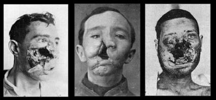 Histoire des arts: Otto Dix, L'art et la guerre (la 1ère guerre mondiale) | RESSOURCES HISTOIRE DES ARTS | Scoop.it