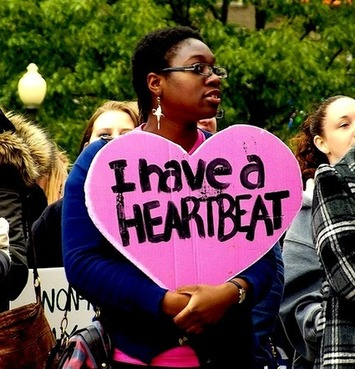 I Have A Heartbeat | Herstory | Scoop.it
