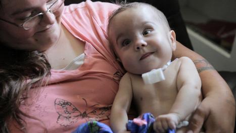 3-D Printing Saves Baby's Life [VIDEO] | Medical Science | Scoop.it