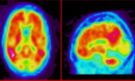 Test that can give two year warning of Alzheimer's | Dementia | Scoop.it