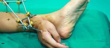 Chine : des médecins greffent une main sur une cheville | Mauvais Goût | Scoop.it