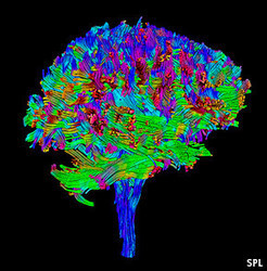 Mind-expanding: America's neuroscience initiative | Social Foraging | Scoop.it