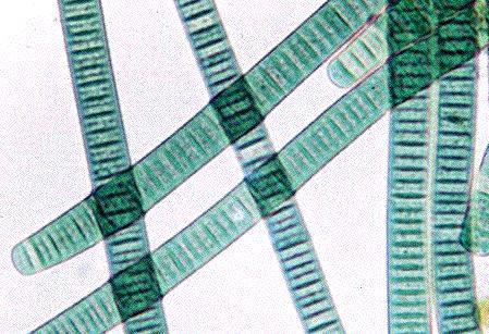 MicroBlog: Blauwalg Almeerderstrand zeer giftig   Bacteriën   Scoop.it