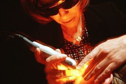 À quoi servent les lasers vasculaires en 2013 ? - Le Figaro   Pharmacie & co en France   Scoop.it