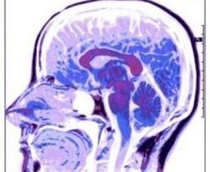 Alzheimer : le cuivre favoriserait la formation des plaques dans le cerveau | Toxique, soyons vigilant ! | Scoop.it