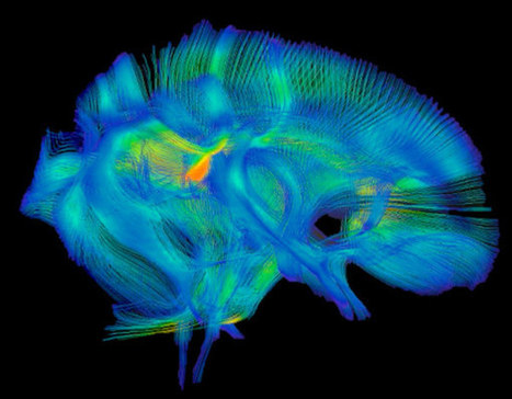 Brain structure abnormalities predict repetitive behaviors — | Cognition and Brain diseases | Scoop.it