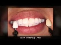 Smile Again Dental | 1-949-768-4949 | Before and After - We Will Make a Difference in Your Lif | moni55hc | Scoop.it