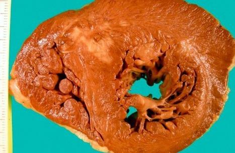 SIAC | Nuevas perspectivas en la prevalencia de miocardiopatía hipertrófica | SIAC | Salud Publica | Scoop.it