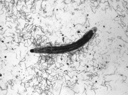 Beneficial Nematodes: Exploring Their Role & Value | Natural Pest Control | Scoop.it