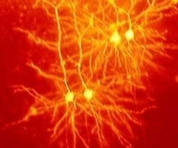 New research helps fight against motor neuron disease | PsyPost | Sheffield Institute for Translational Neuroscience (SITraN) | Scoop.it