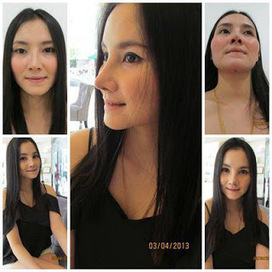 Best Rhinoplasty Photos In Thailand: Nose Augmentation Before And After Photos | Cost-Effective Plastic Surgery Thailand -- Nirunda Infinity Skin Clinic | Scoop.it