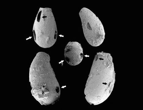 Tiny 'Vampires' Put the Bite on Amoeba Prey 740 Million Years Ago | Twisted Microbiology | Scoop.it