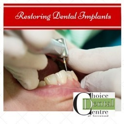 About Restoring Dental Implants, Invisalign And Other Dental Services   Great Reads   Scoop.it