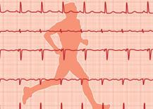 Hardlopen verkleint de kans op hart- en vaatziekten! - HeartLife Klinieken | hardlopen | Scoop.it