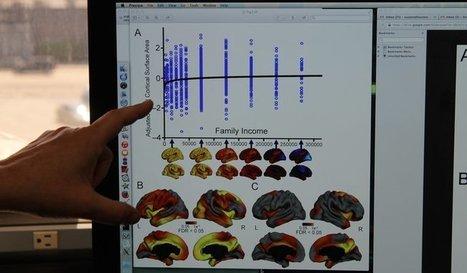Socioeconomic status could be affecting childrens' brains | Organizational Development & Leadership | Scoop.it