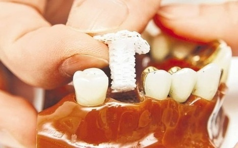 Singapore researchers invented a 3D printed scaffold to grow bone for dental implants | 3D_Materials journal | Scoop.it