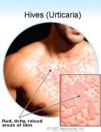 Medecine Alternative Traitement Leucemie Lymphoide Chronique | Hématologie | Scoop.it