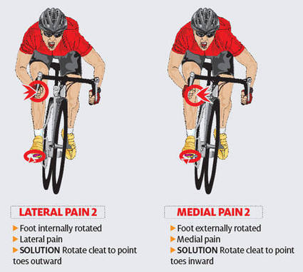 Lateral Knee Pain | Take Care of Your Knees | Scoop.it