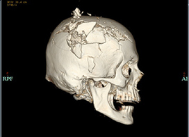 Forensic Radiology and the Medical Examiner   PATOLOGÍA FORENSE   Scoop.it