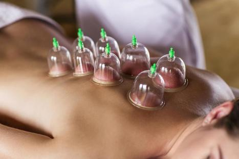 Can Cupping Promote Healing and Pain Relief? | Plant Based Transitions | Scoop.it