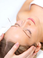 Acupuncture Treats Headaches - New Study   Headaches   Scoop.it