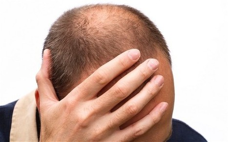 Reduce Hair Loss With Simple Things Available In Your Kitchen Garden! | Health And LifeStyle | Scoop.it