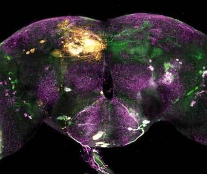 Les chercheurs font l'article: la vie sans dopamine | EntomoScience | Scoop.it