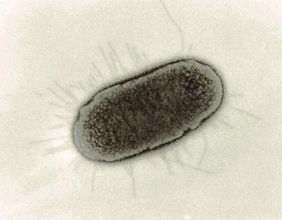 Escherichia coli enterotoxigénica (ECET) | Escherichia coli | Scoop.it