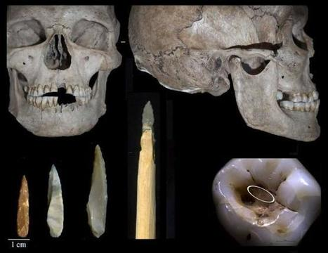 El caso más antiguo de una intervención dental data de hace 14.000 años | Arqueología, Historia Antigua y Medieval - Archeology, Ancient and Medieval History byTerrae Antiqvae (Blogs) | Scoop.it