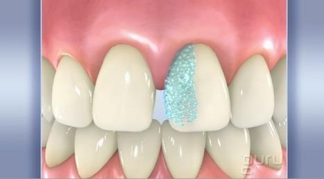 Veneer Malformed Tooth | Pediatric Dentist | Scoop.it