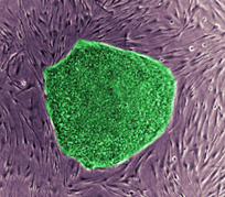 Scientists Report First Success in Cloning Human Stem Cells | TIME.com | The Art of Medicine | Scoop.it