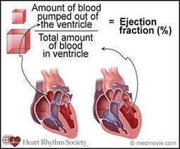 What's Your Ejection Fraction (EF)? | Heart diseases and Heart Conditions | Scoop.it