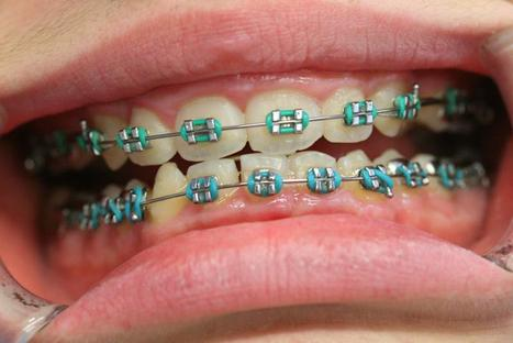 Best Invisible Ceramic Tooth Colored Adult Lingual Dental Braces Clinic in East Delhi NCR India | How Much Do Teeth Implants Cost, Tooth Implants | Scoop.it