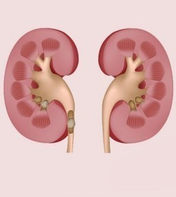 Everything About Blockage From Kidney To Bladder | Blood Disorders | Scoop.it