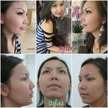 Nose Augmentation Before And After Photos | Bangkok Clinics | Scoop.it