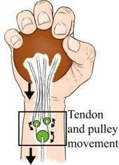 Mechanized human hands: System designed to improve hand function lost to nerve damage | Neuropathy | Scoop.it