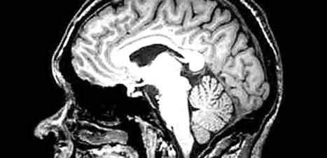 Elle vivait avec l'embryon de son jumeau dans le cerveau | Santé & Médecine | Scoop.it