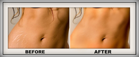 A Quick Look at the Best Stretch Mark Creams for Pregnant Moms!   Pregnancy Stretch Marks 2013   Scoop.it