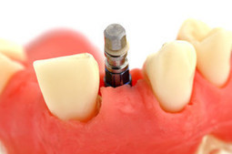 Best Dental Implant Surgery by Expert Dentists | Cosmetic Dentistry | Scoop.it